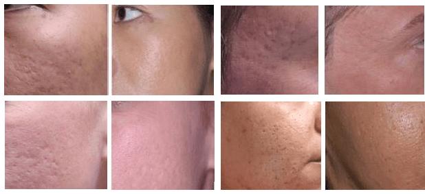 frakcinis odos atnaujinimas prieš ir po
