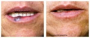 VBeam Perfecta laser treatment
