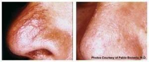 Before and After VBeam Perfecta laser