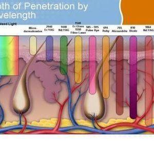 depiliacija su IPL