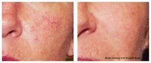 VBeam Perfecta laser treatment before and after