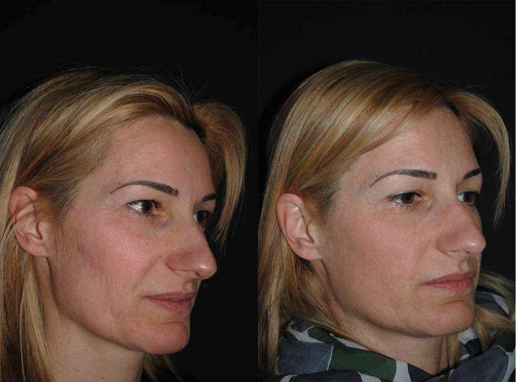 kolagenas veidui