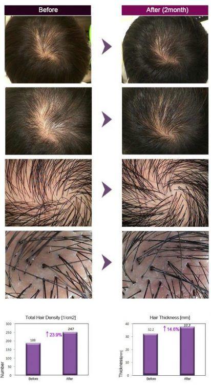 plauku slinkimas gydymas