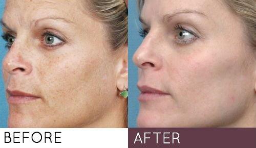 Gentlemax Pro Express Skin Renewal With Laser Era Esthetic